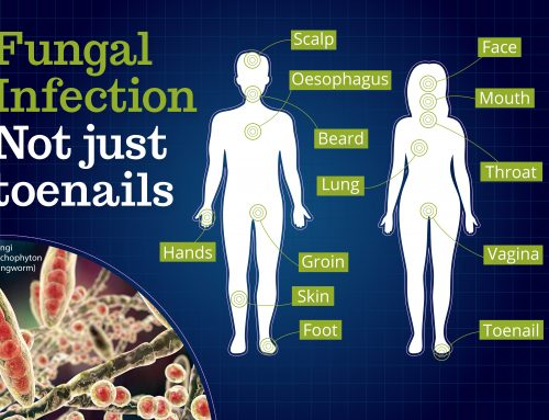 Fungal Infection – Not Just Toenails